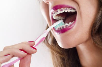 cleaning tips for braces